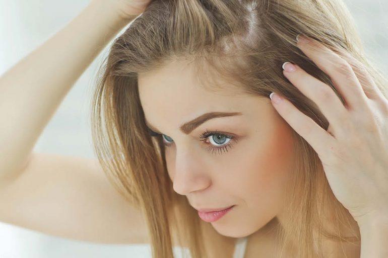 Haarverpflanzung bei Frauen